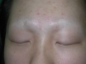 eyebrow transplant before image