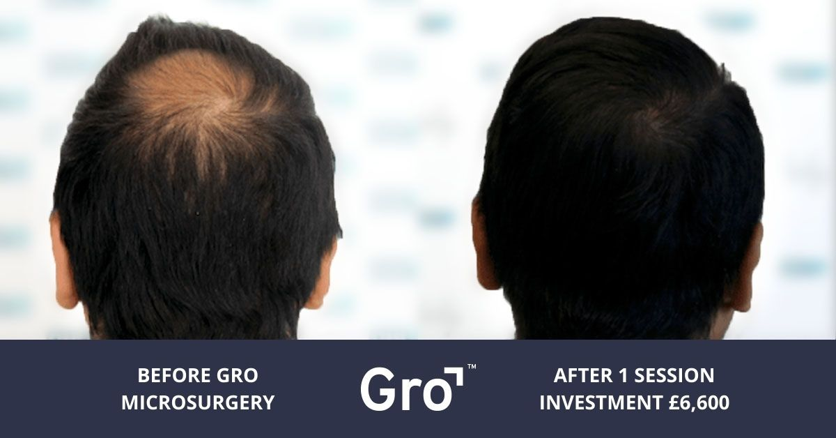 how much does hair transplant cost UK
