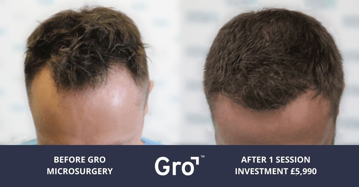 Manchester hair transplant cost
