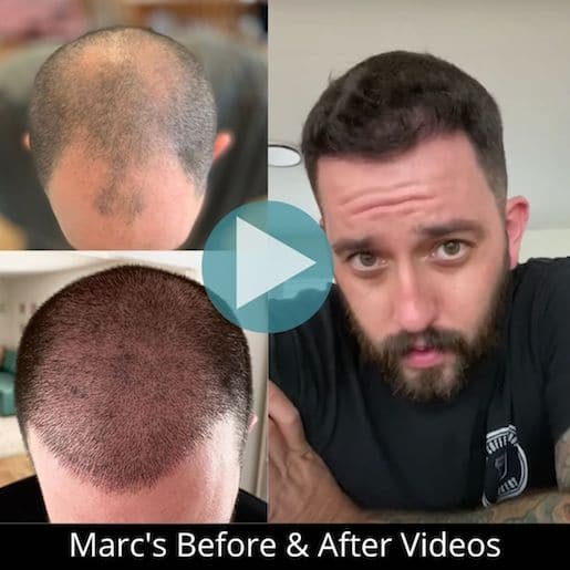 Marc's micro fue before and after photos