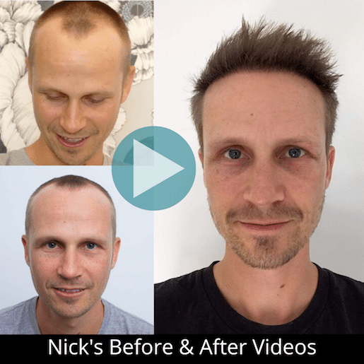 Nick's micro fue before and after photos