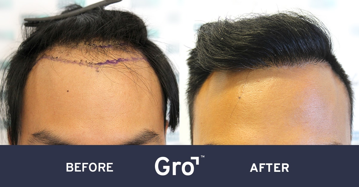 before and after hairline lowering surgery